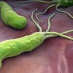 Бактериальный гастрит, вызванный бактерией хеликобактер пилори