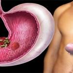 Субатрофический гастрит: симптомы, лечение народными средствами и диетами