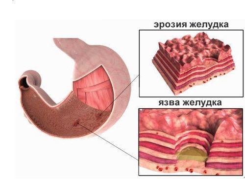 Эрозивный гастрит: симптомы, лечение народными средствами и диета