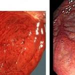 Геморрагический гастрит: этиология заболевания, симптомы и лечение острой формы