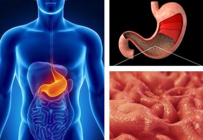 пониженная кислотность при гастрите желудка