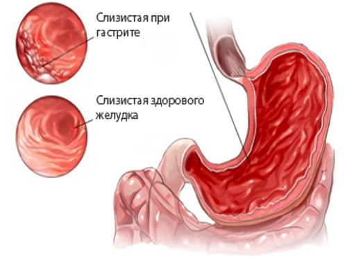слизистая желудка